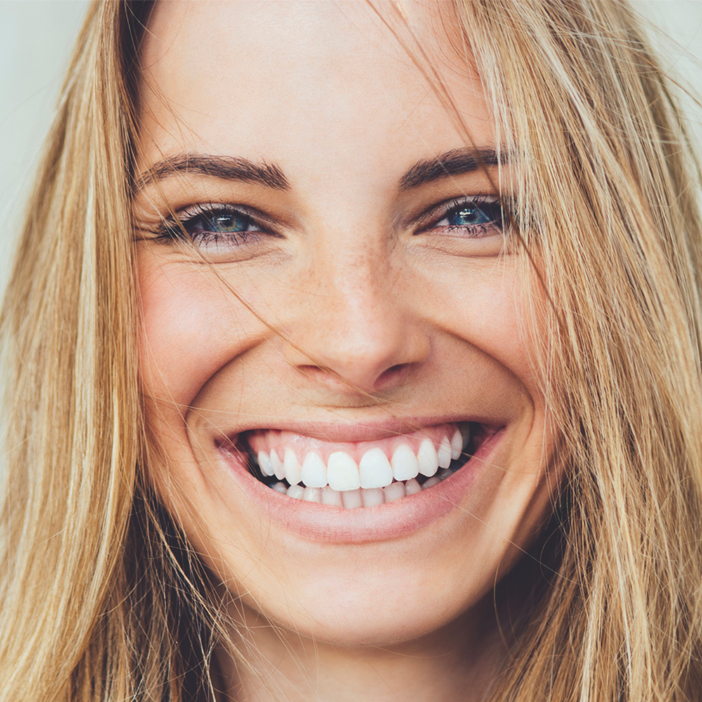 Gigi putih cantik dan rapi syarat jadi model